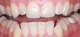 Zoom bleaching treatments from Rauchberg Dental Group