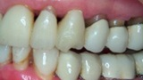 Before dental crown