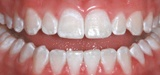 After Zoom bleaching treatment - Rauchberg Dental Group