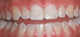 Before Zoom bleaching treatment - Rauchberg Dental Group