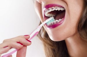 A girl with braces brushing her teeth.