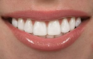 A closeup of someone's white smile.