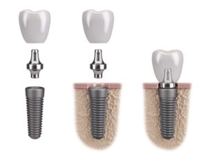 parts dental implant