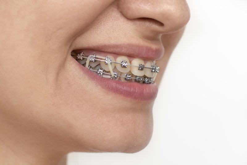 an up-close image of a person wearing rubber bands on braces in Parsippany